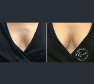 Modelowanie piersi bez biustonosza!, oferta