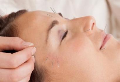 Lofe-Therapy Gabinet Terapii Naturalnych - Anna Lofek - Akupunktura Jaworzno