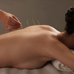 ACUMEDIS AKUPUNKTURA - Akupunktura Olsztyn