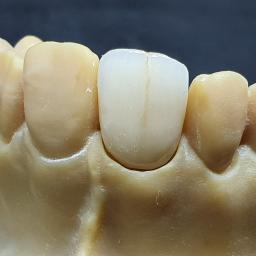 Art Dental Lab tech. dent. Olga Wernerowska - Prywatne kliniki Lubicz